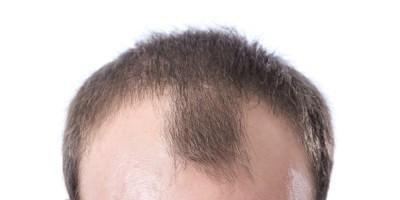 receding-hairline